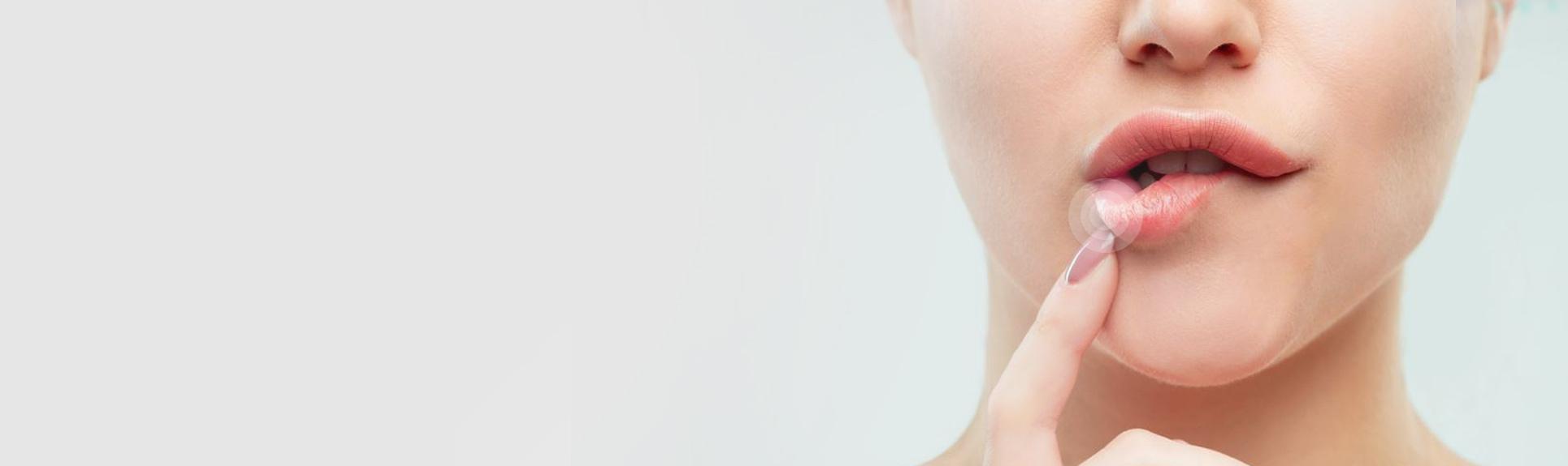 Rimedi per l'Herpes Labiale - Parafarmacia PillolaStore rimedi